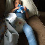 Surviving Life with a Toddler in a Spica Cast