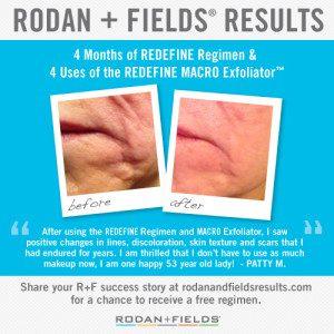 Results Redfine 2